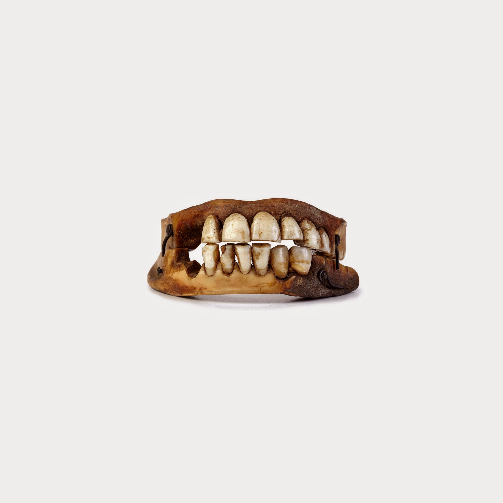 Quigley\'s Cabinet: Dentures from the dead