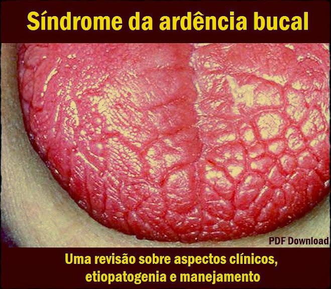 Sindrome-da-ardência-bucal