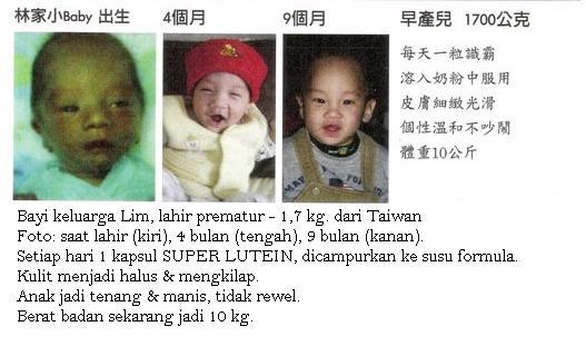 Super Lutein (S.Lutena) Membantu Pertumbuhan dan stamina pada bayi premature