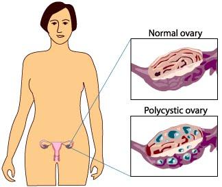 Sindrome do ovario policistico