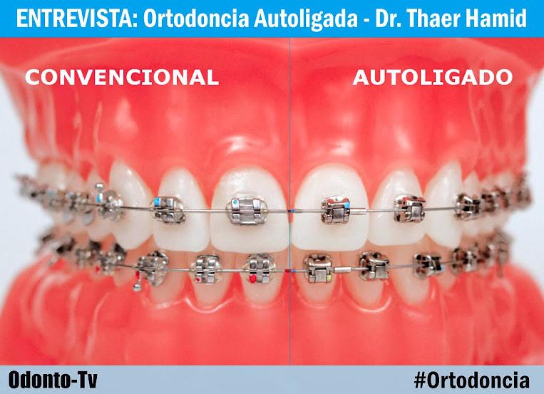 ortodoncia-autoligable