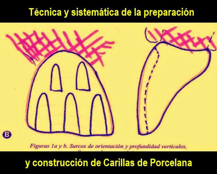 carilla-porcelana