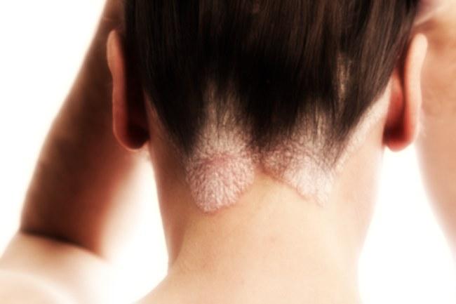 Segni e cura di psoriasi sulla testa