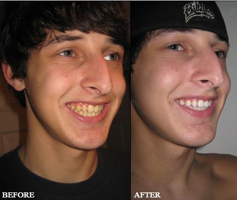 Best Way To Whiten Teeth At Home Fast And Cheap March 2011