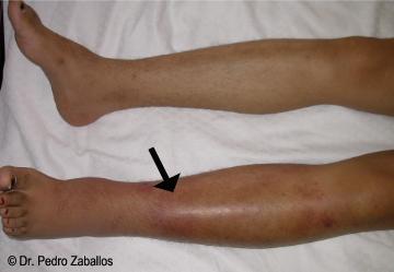 La complicación después de la operación de las venas en los pies