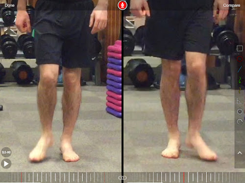 Gait analysis