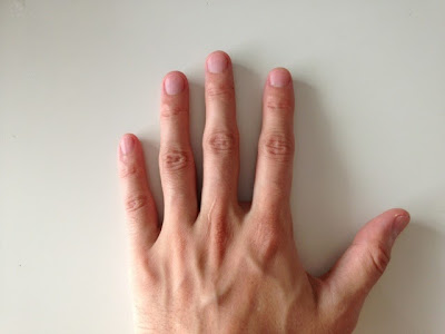 爪(手)の写真