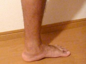 左足首の状態