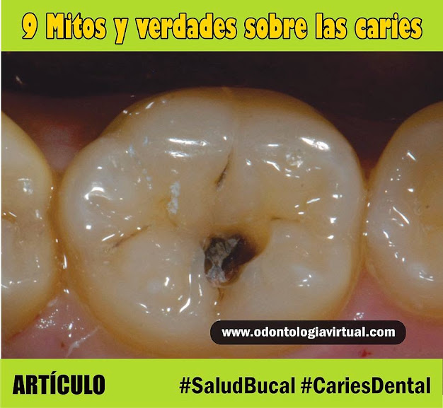 caries-dental