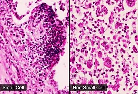 Có hai loại chính của ung thư phổi là ung thư phổi tế bào nhỏ và ung thư phổi không phải tế bào nhỏ.