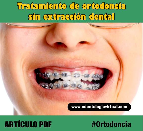 ortodoncia-sin-extracciones