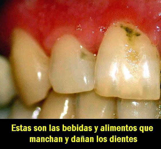 manchas-dentales