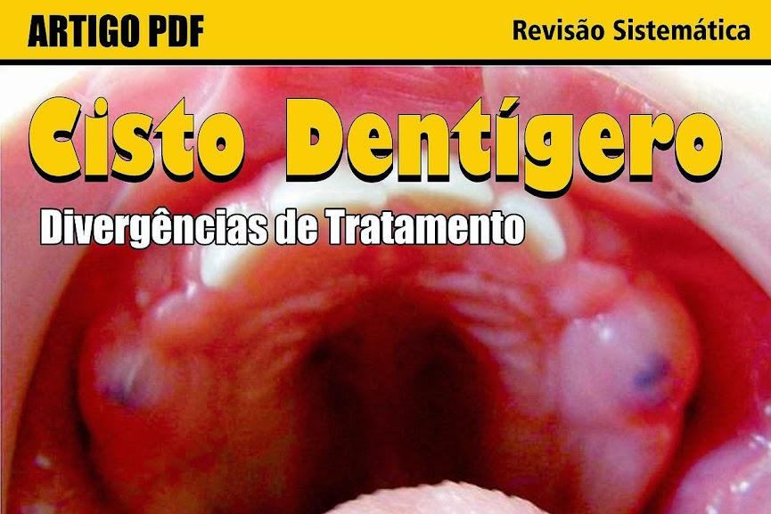 cisto-dentigero