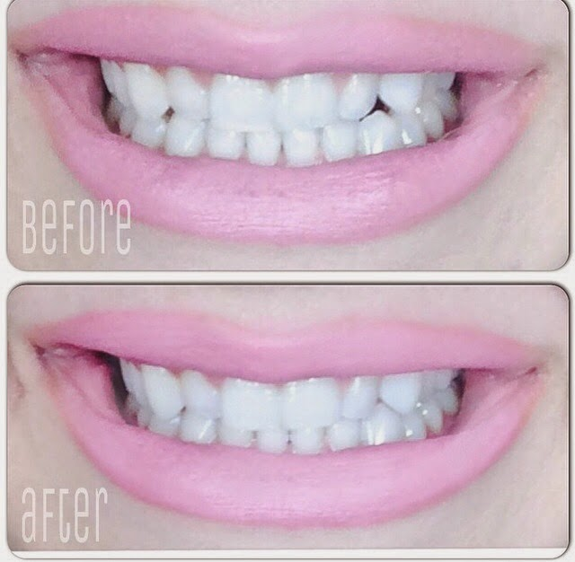 Luster Pro White Teeth Whitening System