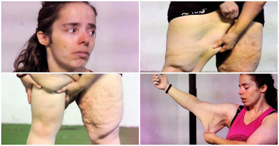 Susana Henriques cria crowdfunding para financiar cirurgia de remoção de pele em excesso