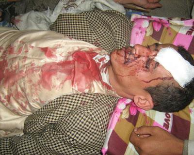 الى من لدية ضمير في اليمن ... هناك مأساة حقيقه في جامعه صنعاء .. والاعلام يضللكم ... اتقوا الله 3%2528335%2529