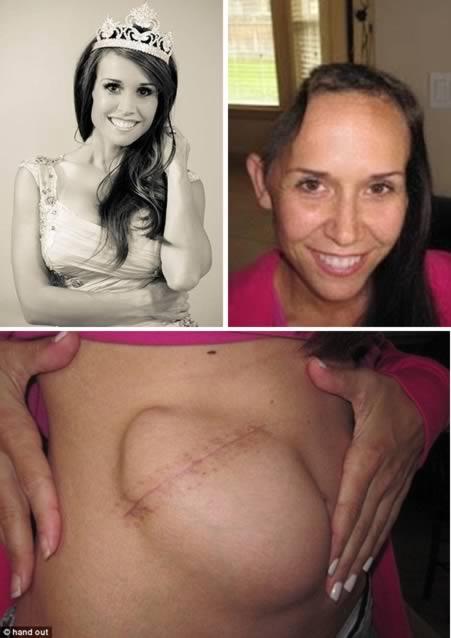 2. - A ex-miss que teve seu crânio temporalmente ligado ao estômago
