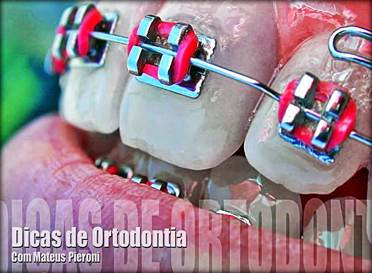 dicas-ortodontia