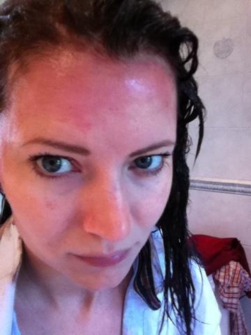 allergisk reaktion hårfärg