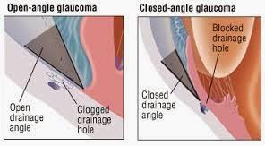 Penyebab Glaukoma Dan Pengobatan Herbal Mirtoplus