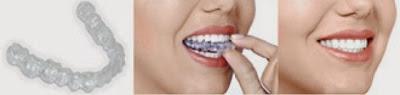 Sensu Dental Studio Invisalign Braces - Invisible Braces
