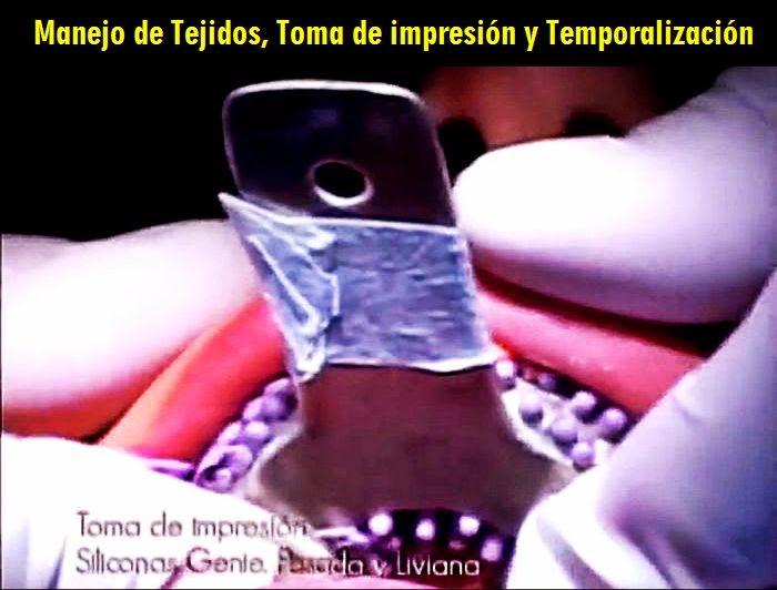 impresion-dental