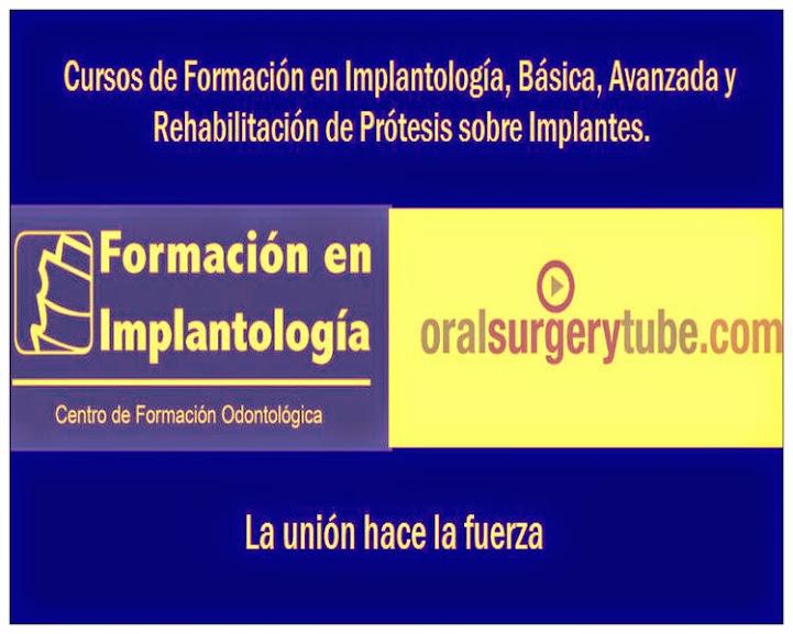 cursos-implantologia