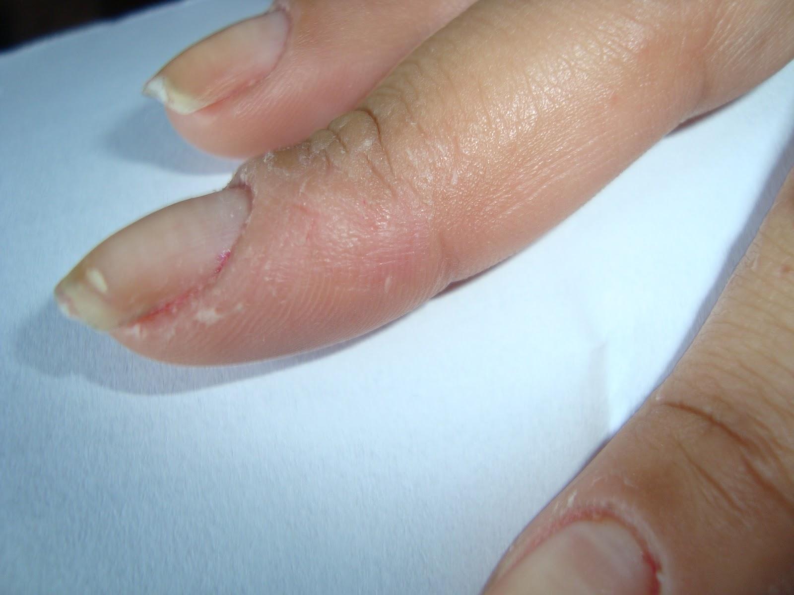 Unguentos de um fungo em pele de corpo