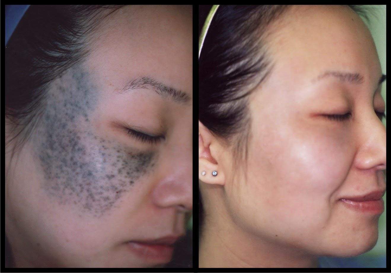 Laser Hair & Skin Centre