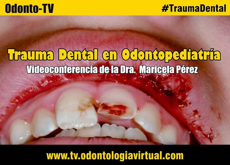 trauma-dental