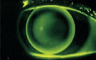 lentet e forta per keratokonusin (fluorescin)