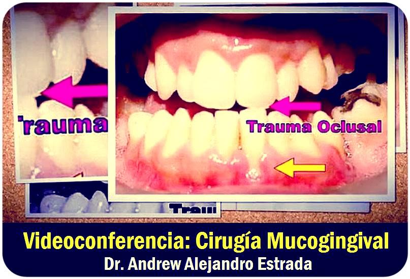 cirugia-mucogingival