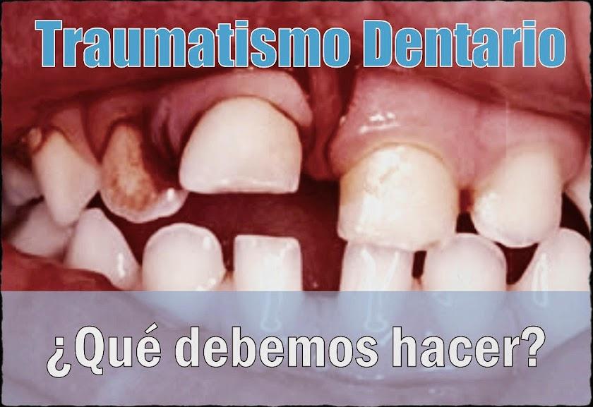 traumatismo-dentario