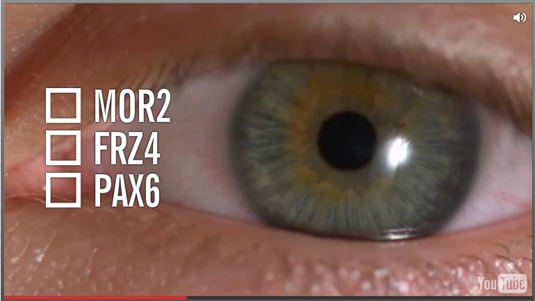 FRZ4 我记得是跟视力有关的 DNA,点击图片去维基(全英文,我没看,不知道我记忆中对不对,看了的告诉我)