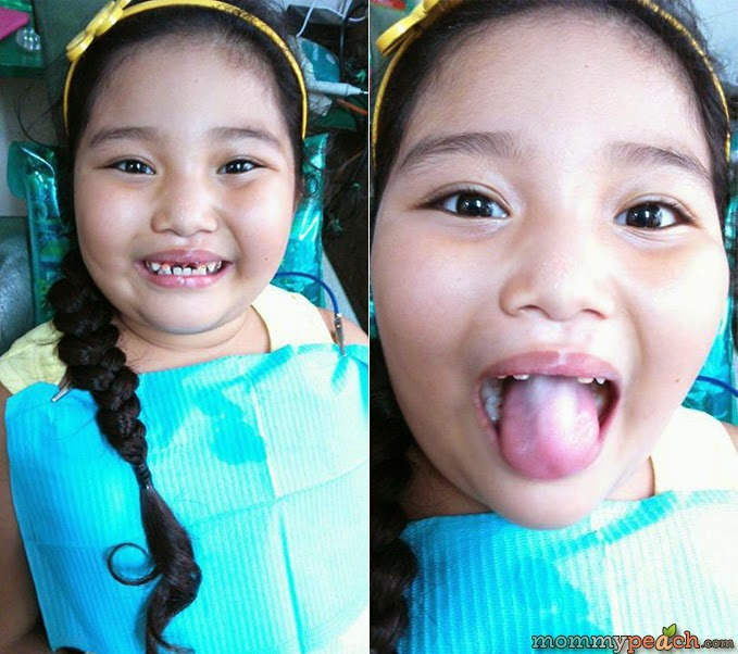 Goodbye to Ykaie's Two Front Teeth