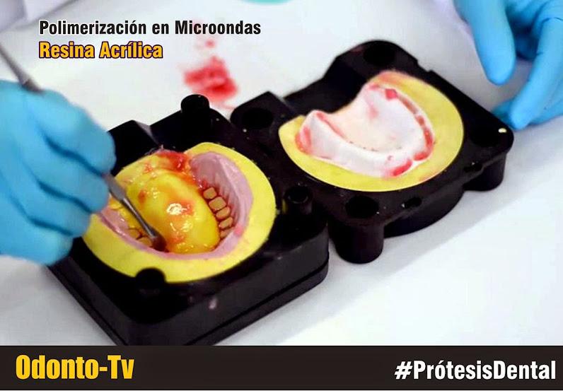 polimerizacion-microondas