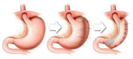 gastroplastia preço