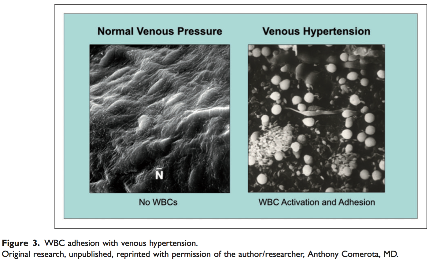 WBC adhesion  with venous hypertension