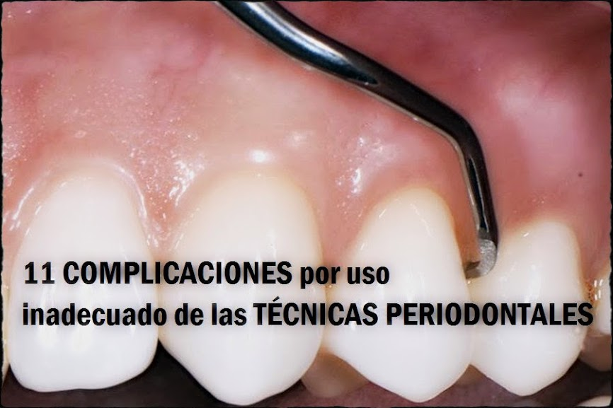complicaciones-periodontales