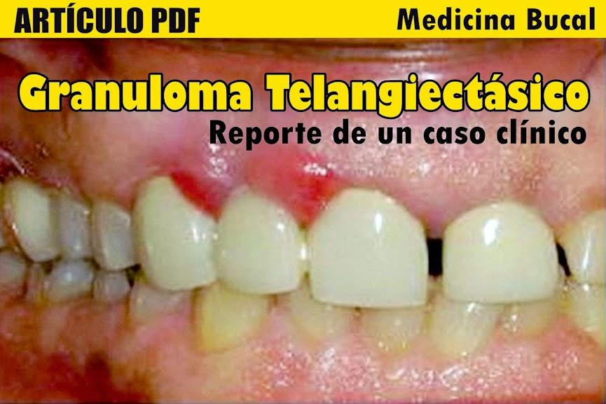 granuloma-telangiectasico
