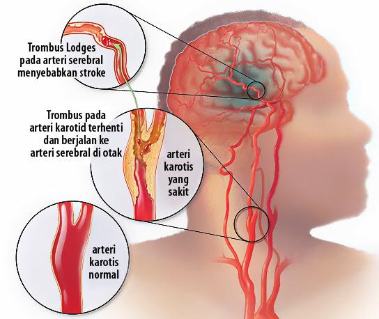 Pencegahan & Penanganan Sejak Dini Terhadap Sakit Stroke