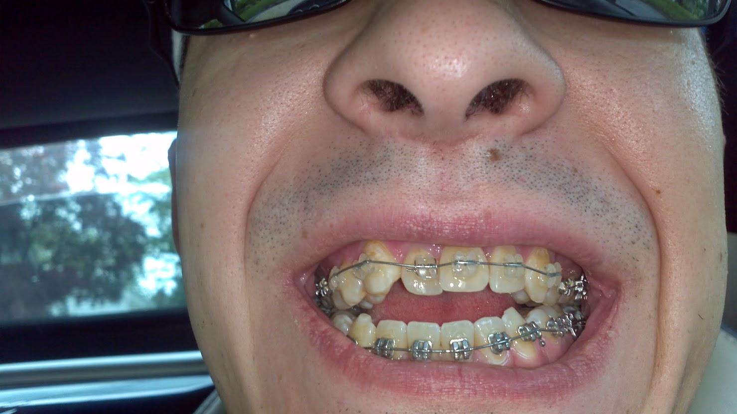 My jaw surgery – Page 3 – devinzuczek.com