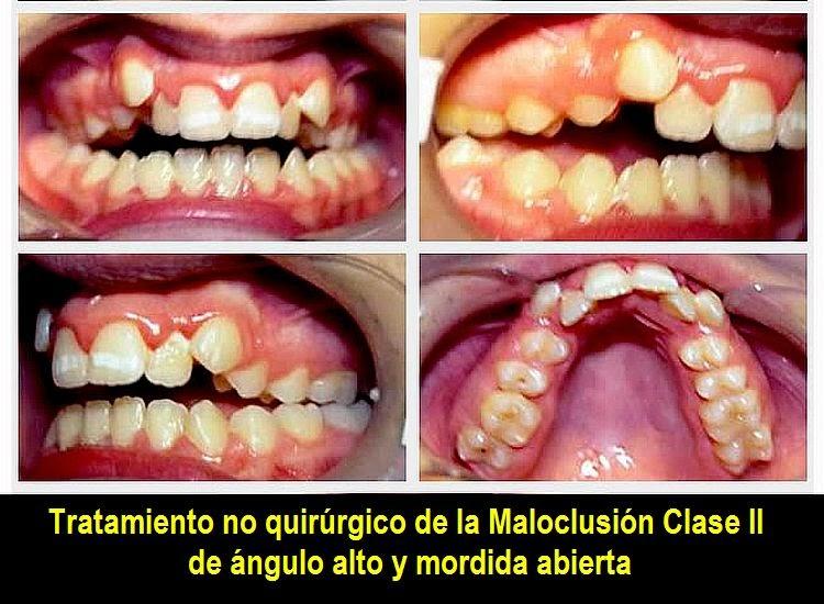 Pdf tratamiento no quir rgico de la maloclusi n clase ii for W de porter ortodoncia