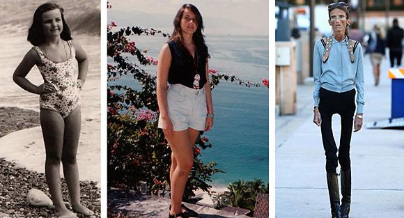 Anoreksia Adalah