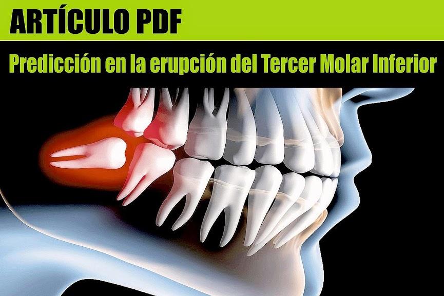tercera-molar