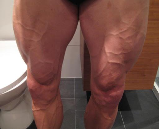 Synliga blodådror ben