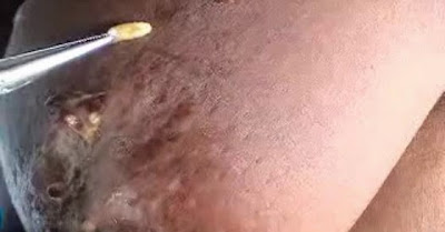 Larvas Parasitas De Moscas Dentro Do Seio De Uma Mulher São Removidas Com Pinça... NOJENTO!