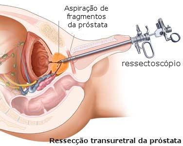 impotenza causata dalla chirurgia prostatica
