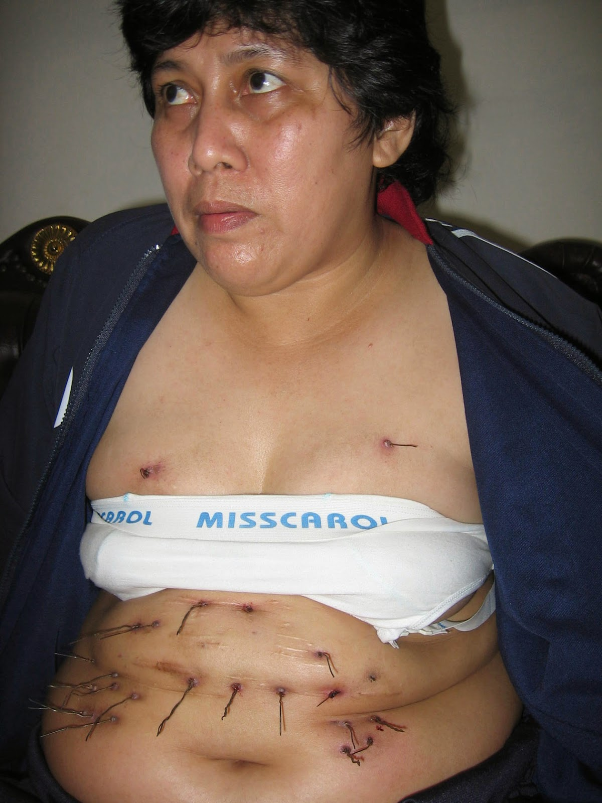 Noorsyaida with metal wires grow in her stomach