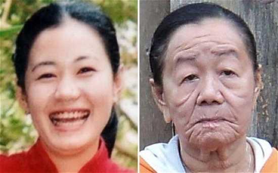 7 - Envelhecimento precoce
